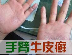 手臂牛皮癣可以治好吗