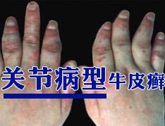 关节型银屑病发病的原因是什么