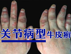 怎样预防关节型银屑病