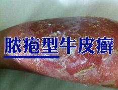 怎么治疗脓疱型牛皮癣